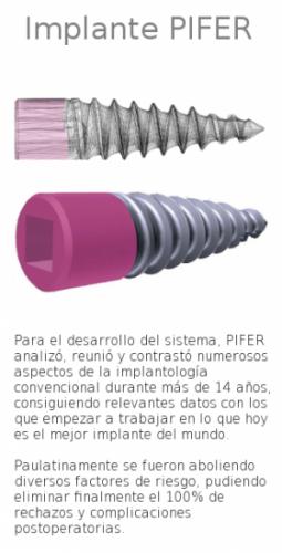implante_pifer