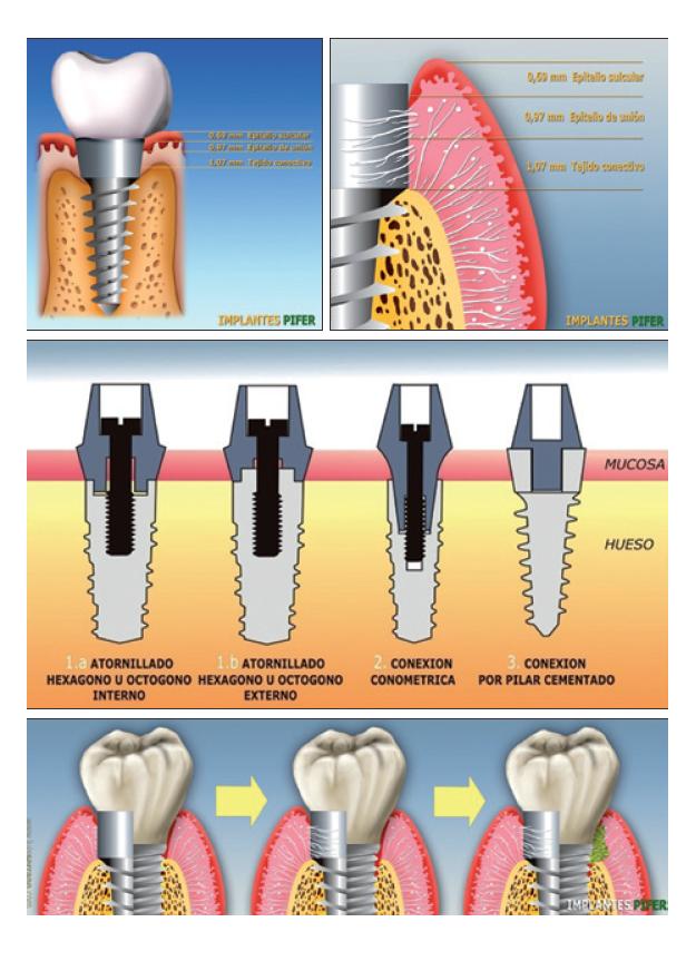 pifer_implante_0