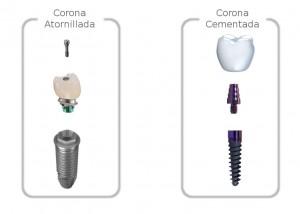 Diferencias entre las coronas dentales cementadas y atornilladas