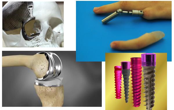Implantes de Titanio en el cuerpo humano