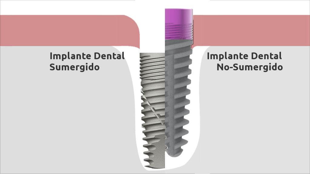 implantes dentales sumergidos y no sumergidos KO
